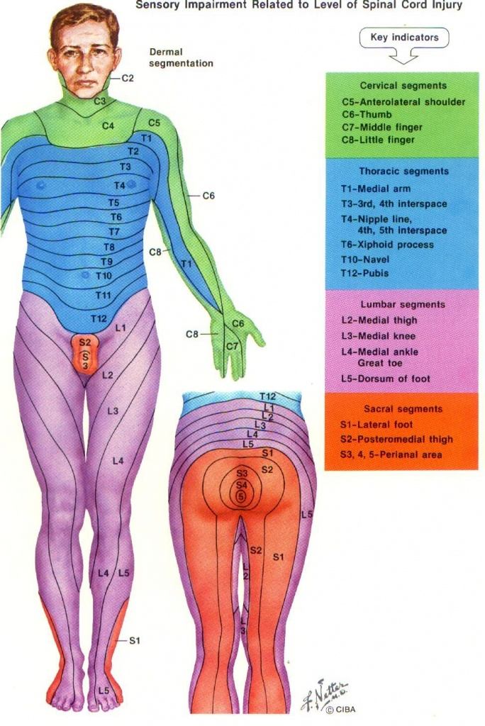Dermatome Chart With Symptoms | More Pain First Thing In The Morning - Printable Dermatome Map